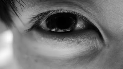 Causes, Symptoms and How to Deal with Tired Eyes