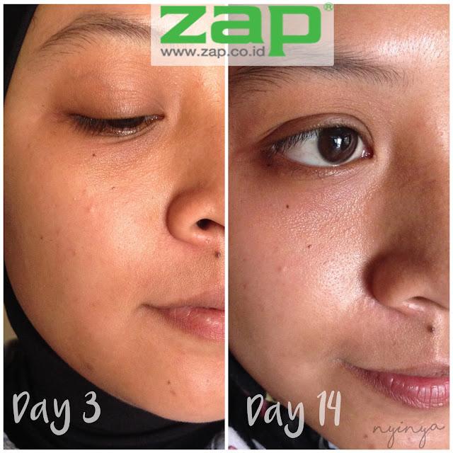 Hasil Perawatan di ZAP