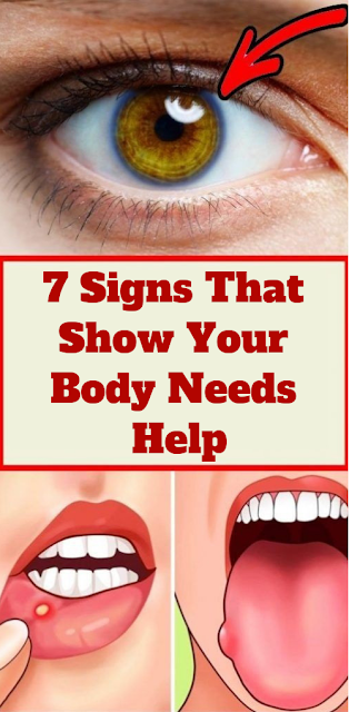 7 Signs That Show Your Body Needs Help