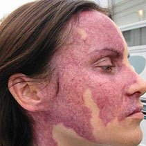 Common Facial Skin Problems and Solutions