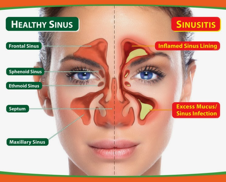 frequent sinus infections