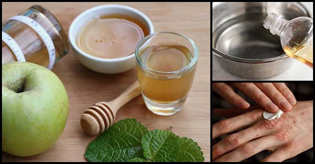 Different Ways To Use Apple Cider Vinegar Against Psoriasis