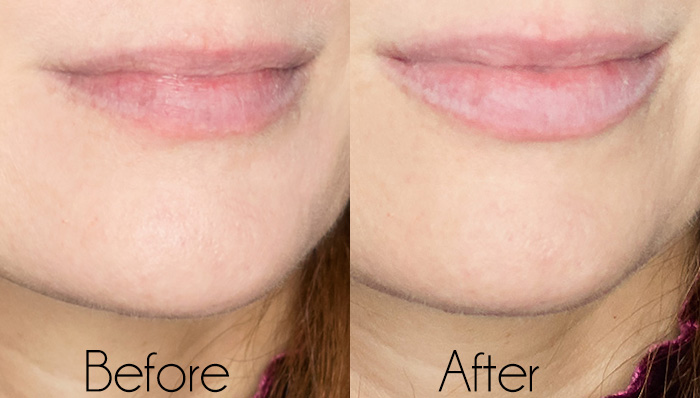 PMD Kiss Lip Plumping System- Honest Review plus Before & After
