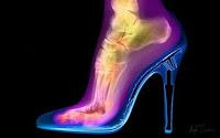 кости ноги в туфле на каблуке