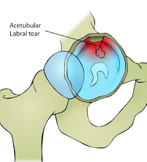 Hip Injury: Acetabular Labral Tears