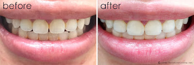 Crest 3D White Whitestrips with Light Teeth Whitening Kit Before and After Review