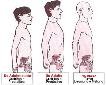 kanceri i prostates simptomat