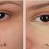 كيفية علاج الهالات السوداء والانتفاخات حول العين في المنزل
