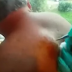 This man wants to get rid of the lump on his back. But when she pricks it, everything comes flying at her.