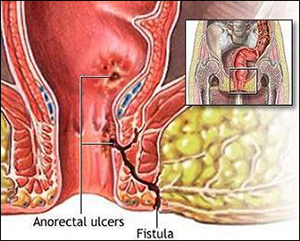Are there any alternative to surgery for Anal fistula