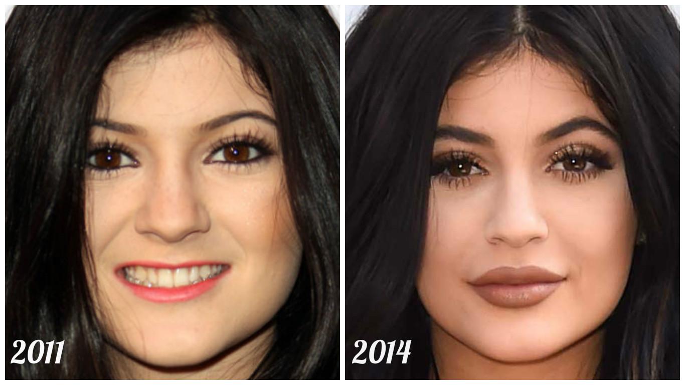 Candy Lipz: O segredo do bocão da Kylie Jenner