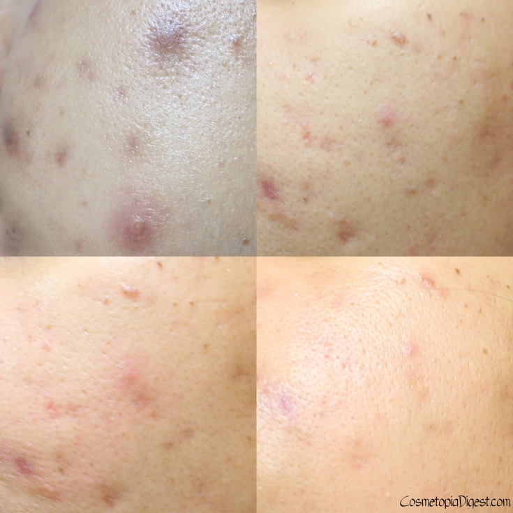 How I vanquished cystic adult acne: Cellnique Acne Banisher Duo Pack review and usage results.
