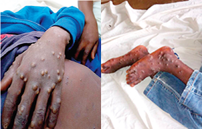 monkey pox virus lagos