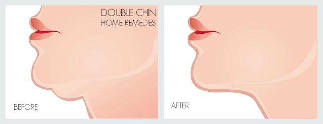 Masalah 'Dagu Berlipat' Atau 'Double Chin'