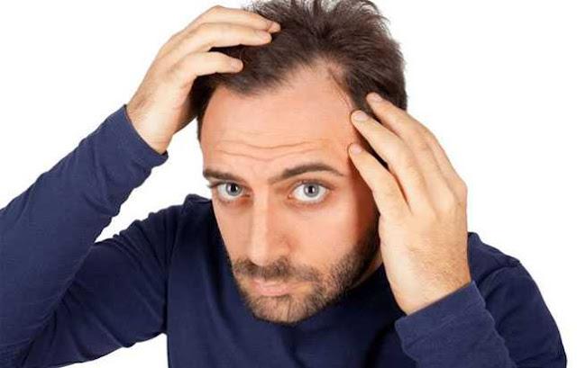 बालों को झड़ने से कैसे रोकें  ?