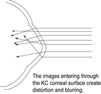 55c641cec143b Distorções da imagem no ceratocone SEM lente de contato (perceba como os  raios de luz entram no olho de forma irregular)