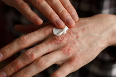 4 Natural Ingredients for Treating Itchy Eczema