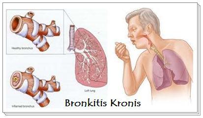 Pengobatan Herbal Atasi Penyakit Bronkitis Kronis