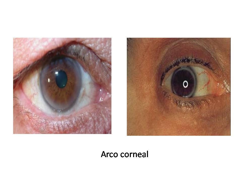 como aliviar una crisis de acido urico acido urico alto alimentos acido urico que organo lo produce