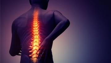 10 dicas naturais para prevenir e reverter dor nas costas