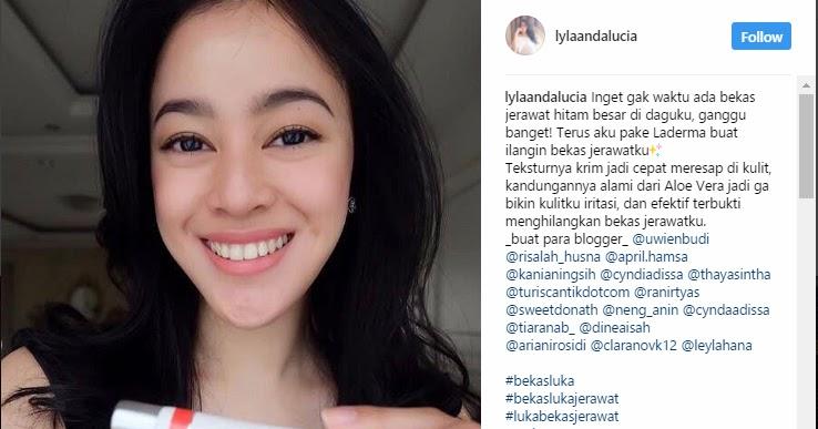 Cyndaadissa Indonesian Blogger Laderma Si Penghilang Bekas Luka