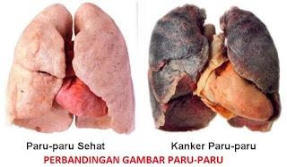 Penyakit Kanker Paru Paru