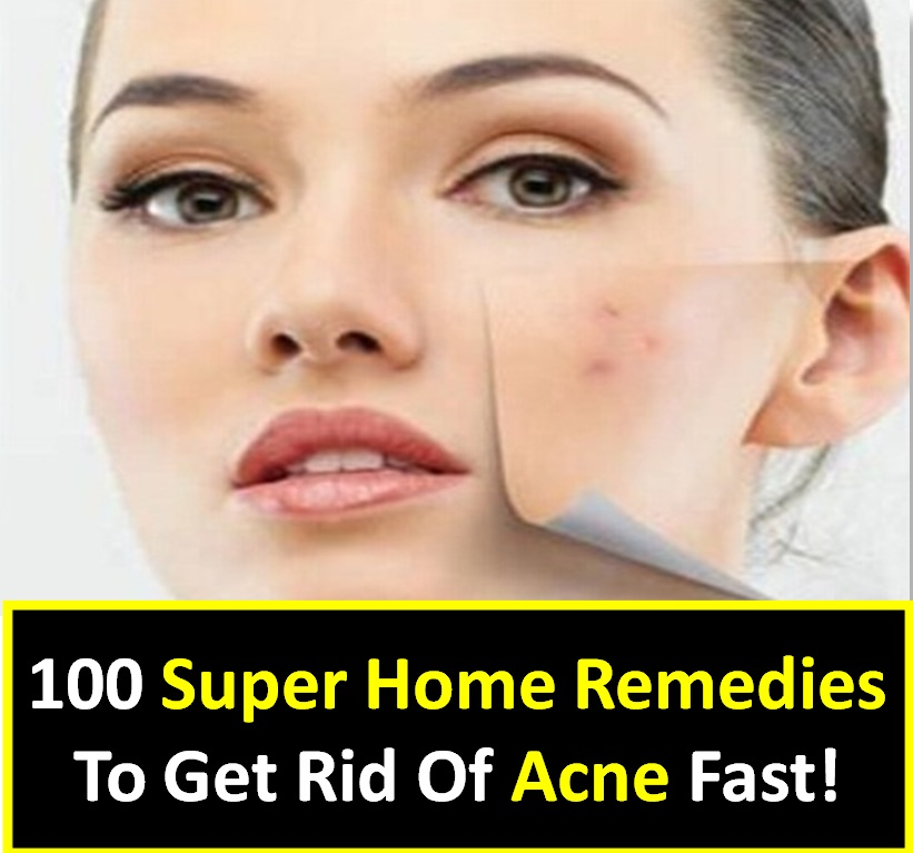 How To Cure Acne And Pimple Naturally