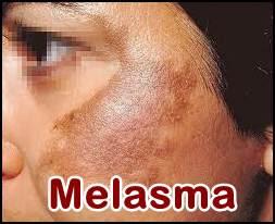 http://maulherbal.blogspot.co.id/2017/08/cara-menghilangkan-penyakit-melasma.html