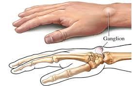 ganglion benjolan di pergelangan tangan
