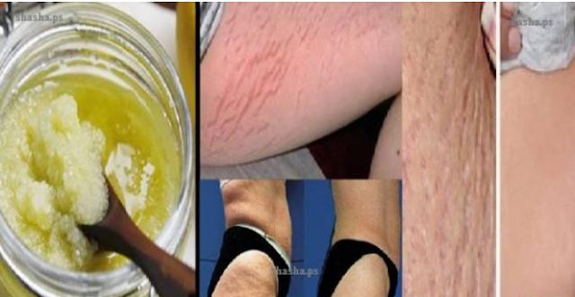 وصفة قوية  للتخلص من علامات تمدد الجلد! قولوا وداعاً لكابوس تشوه الجلد! طبيعية ومجربة 100%