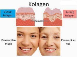 kolagen; kekurangan kolagen; kulit anjal; sakit sendi; awet muda; nampak tua; kolagen shaklee