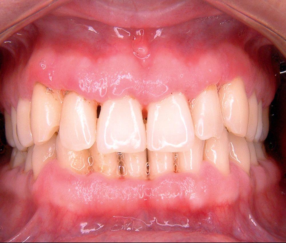 vih-periodoncia