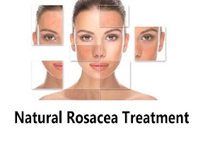 Natural Home Remedies For Rosacea Natural Rosacea Treatment