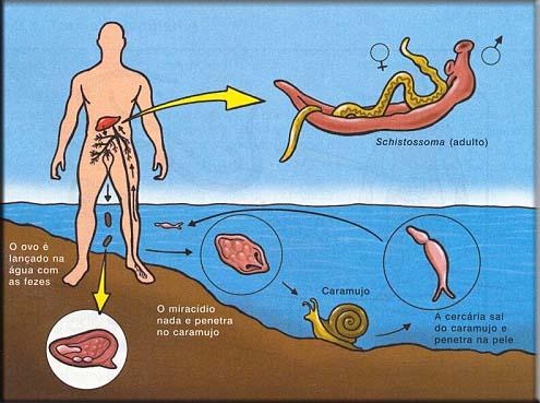 #Esquistossomose - Sintomas, Prevenção e Tratamento