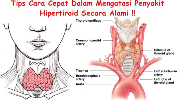 Obat Tradisional Hipertiroid