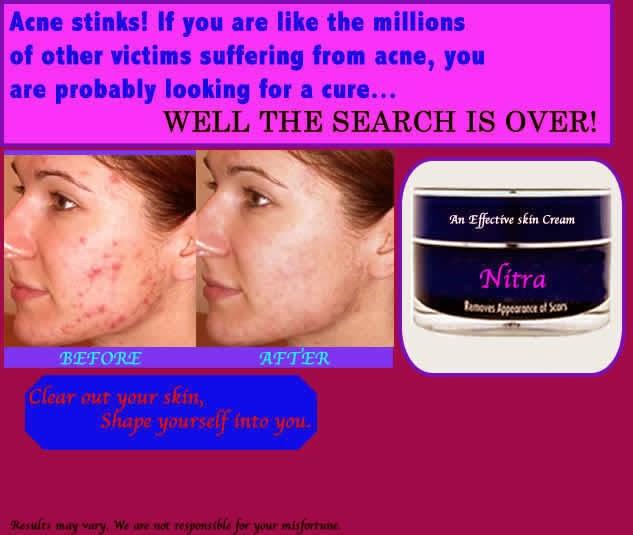 Sakib Ahmed S Electronic Portfolio Acne Scar Removal Cream Advertisement