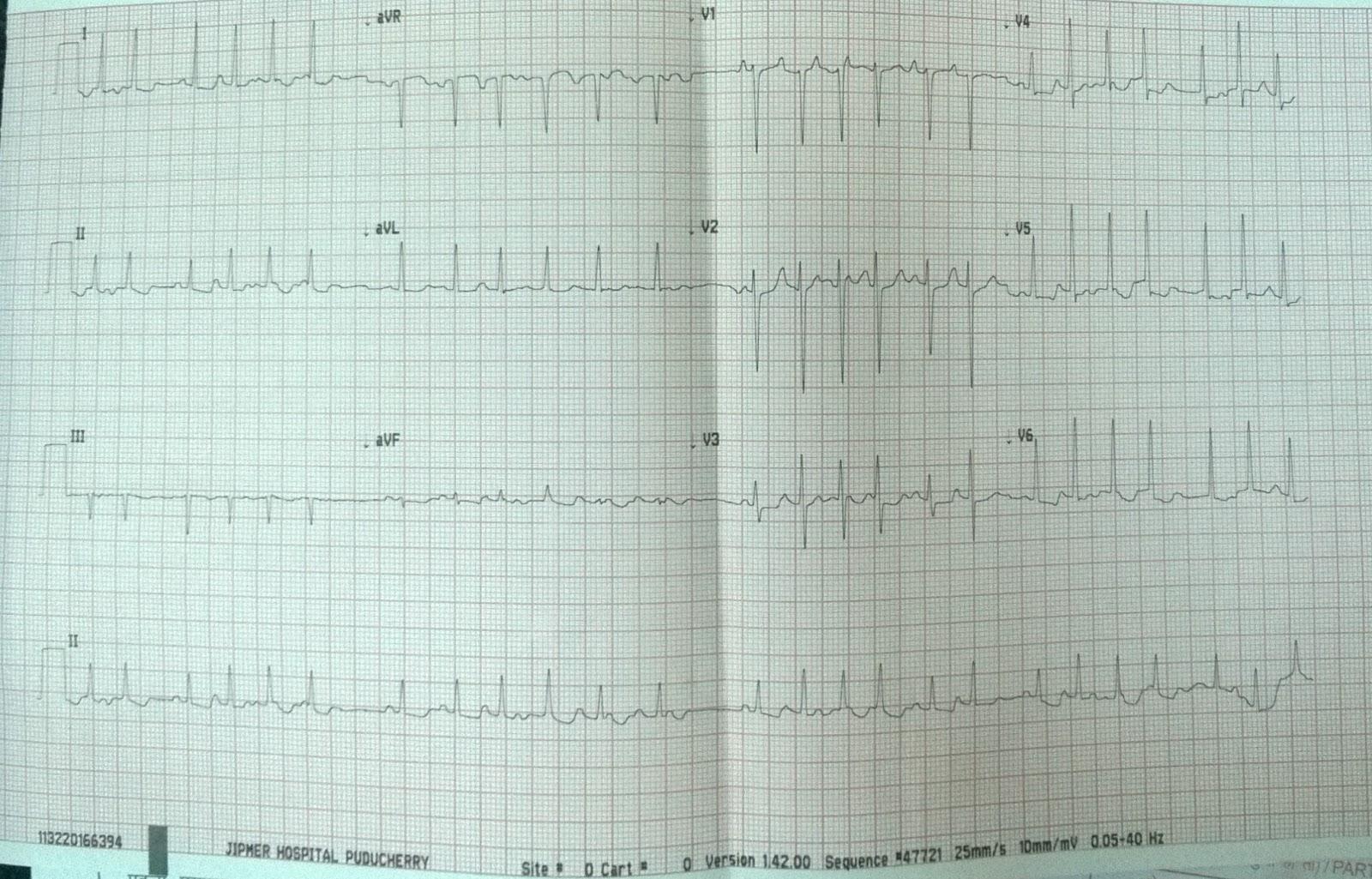 Cardiology window: Atrial tachycardia