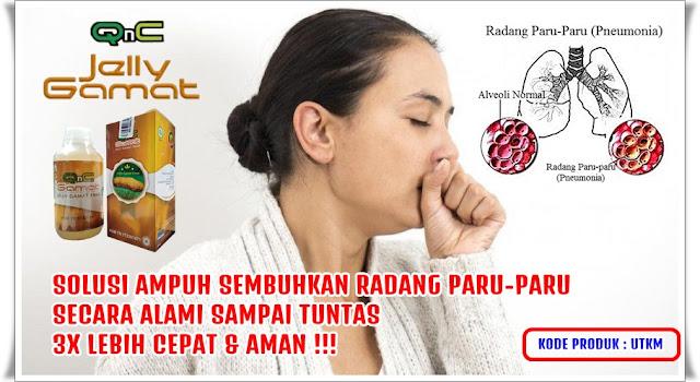 Cara Mengobati Radang Paru-paru Secara Alami Terbukti ...