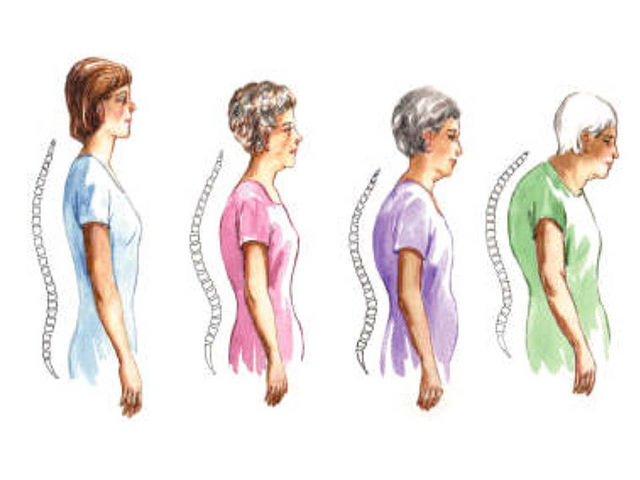 Pengertian Penyakit osteoporosis, Gejala osteoporosis, Mencegah osteoporosis, Mengobati osteoporosis