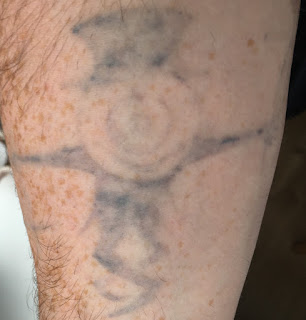 Tattoo shortly before picosure laser removal