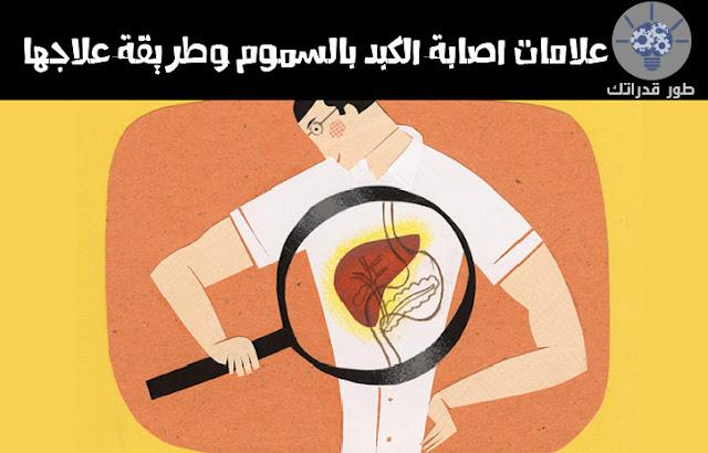 علامات اصابة الكبد بالسموم وطريقة علاجها