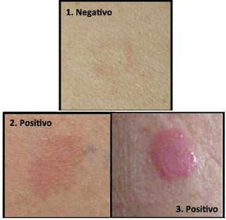 prueba sensibilidad, prueba alergia, irritacion hidroquinona, hidroquinona uso