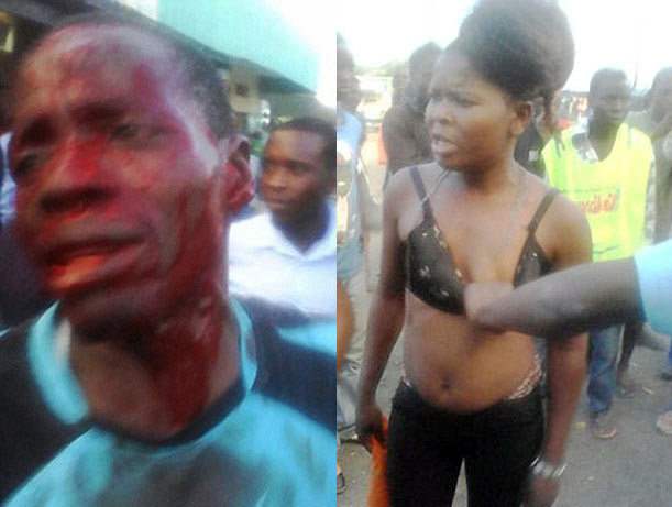 Check out what this man told prostitute that made her break his head with bottle