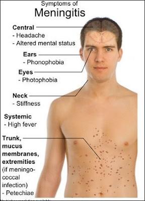 Sembuhkan Meningitis Dengan Cara Cepat