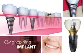 Trồng implant khi bị tiêu xương hàm được không?