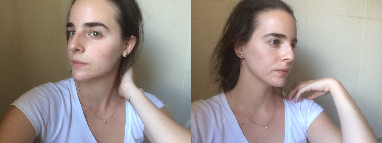 One week using Benton skincare products: before