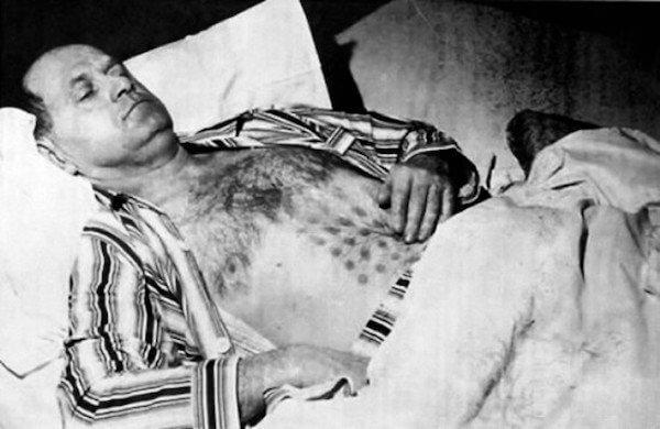 Stephen Michalak cu arsuri misterioase pe corp