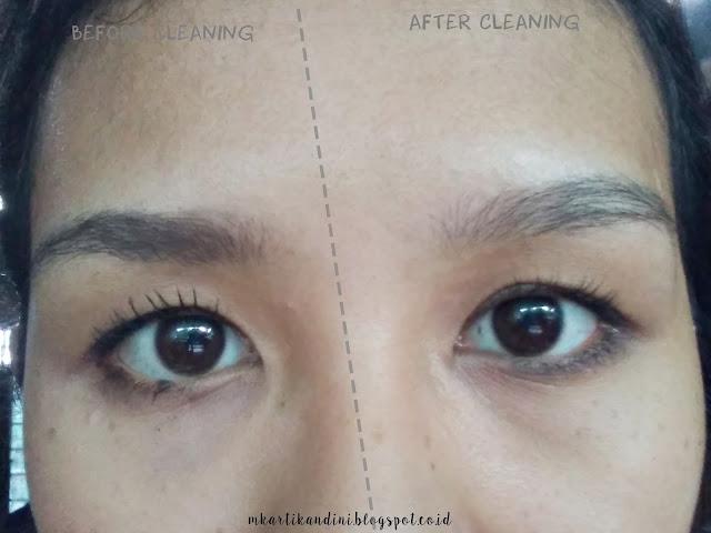 review pembersih wajah micellar water