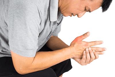 √ Bahaya Asam Urat Dalam Darah: Penyebab Dan Masalahnya ⭐ Manfaat Milagros Untuk Asam Urat