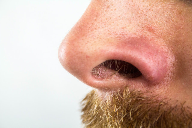 5 Cara Menghilangkan Komedo Di Hidung Secara Alami Dan Permanen